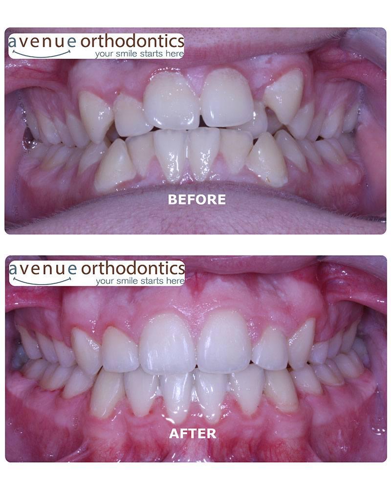 crossbite before & after